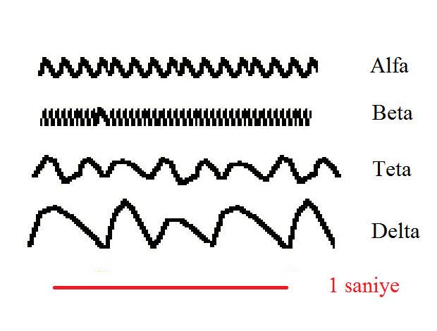 EEG Hakkında Temel Bilgiler