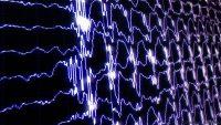 Obsesif Kompulsif Bozuklukta Transkranial Manyetik Stimülasyon ve Tedaviye Cevabı Öngörmede EEG Kullanımı