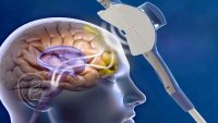TMS Beyinde Nasıl Bir Etki Oluşturmaktadır?