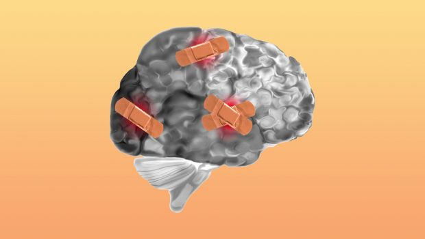 Hafif Travmatik Beyin Hasarı ve Travma Sonrası Stres Bozukluğu Olan Kişilerde Serum Nörosteroid Düzeylerinin Kortikal Kalınlık ile İlişkisi
