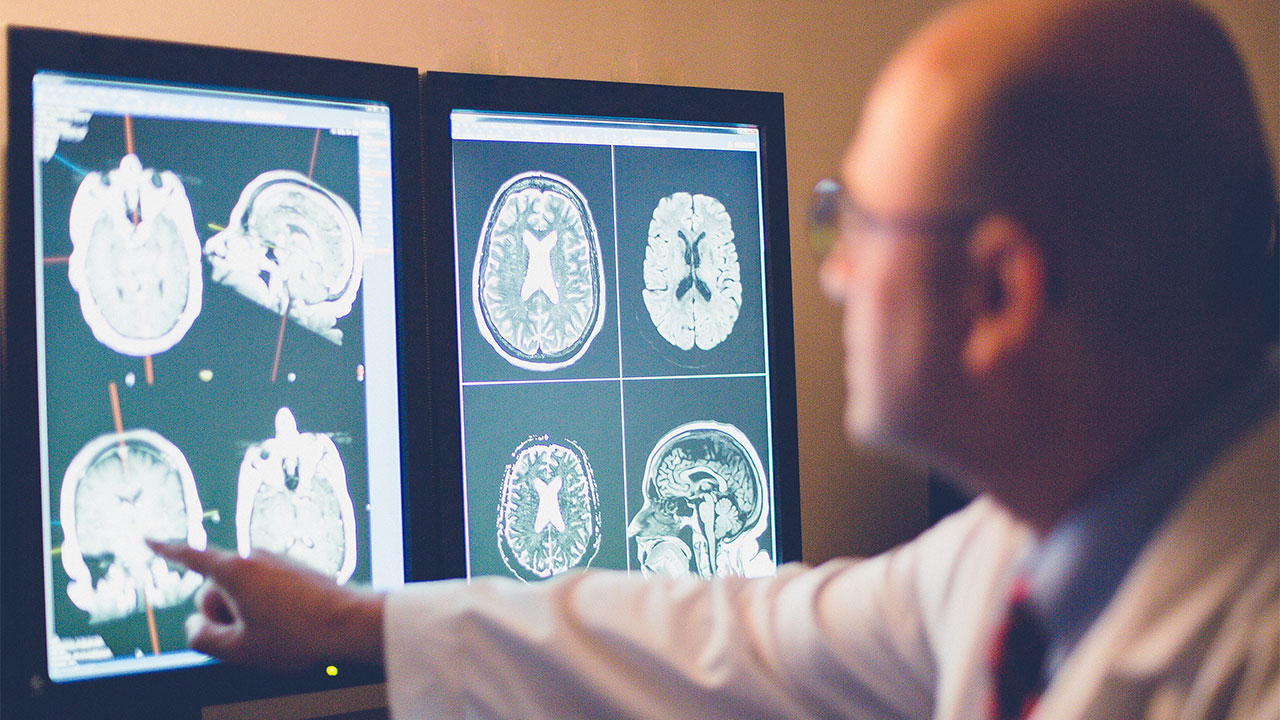 Alzheimer ve Hastalığı Öngörmek